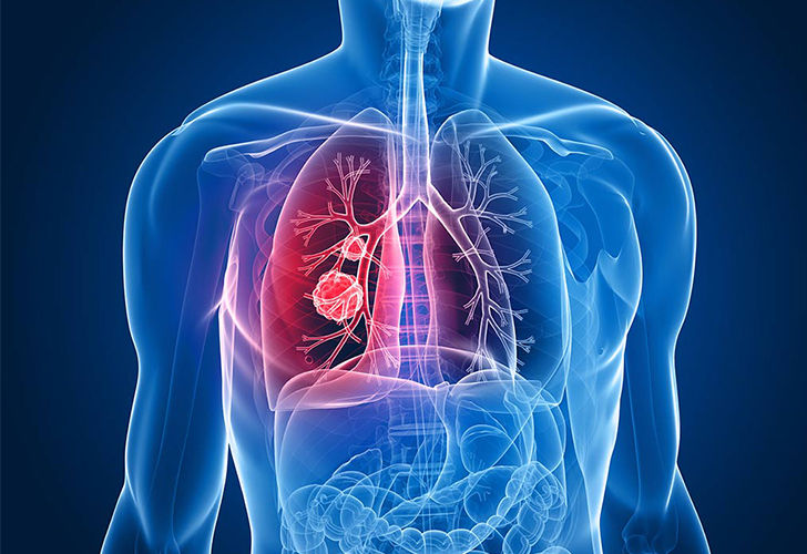 9-warning-signs-of-lung-cancer-you-might-ignore_2